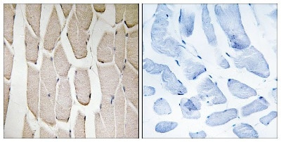 Immunohistochemistry (Formalin/PFA-fixed paraffin-embedded sections) - Anti-MARCH3 antibody (ab137261)