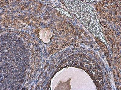 Immunohistochemistry (Formalin/PFA-fixed paraffin-embedded sections) - Anti-Vimentin antibody (ab137321)