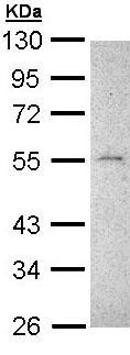 Western blot - Anti-MMP16 antibody (ab137322)