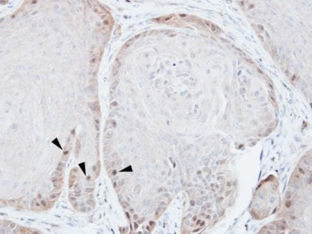 Immunohistochemistry (Formalin/PFA-fixed paraffin-embedded sections) - Anti-Rad51 antibody (ab137323)
