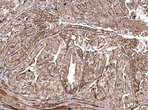 Immunohistochemistry (Formalin/PFA-fixed paraffin-embedded sections) - Anti-MMP1 antibody (ab137332)