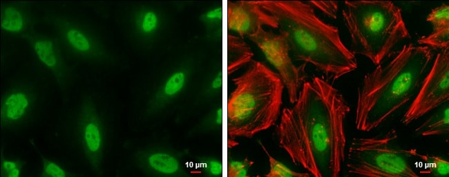 Immunocytochemistry/ Immunofluorescence - Anti-CREBBP antibody (ab137334)