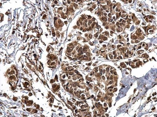 Immunohistochemistry (Formalin/PFA-fixed paraffin-embedded sections) - Anti-CREBBP antibody (ab137334)