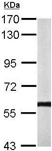 Western blot - Anti-Calcineurin A antibody (ab137335)