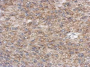 Immunohistochemistry (Formalin/PFA-fixed paraffin-embedded sections) - Anti-Lyn antibody (ab137338)