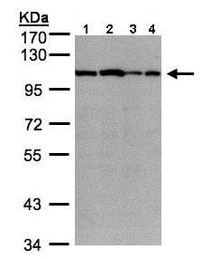 Western blot - Anti-Sarcomeric Alpha Actinin antibody (ab137346)