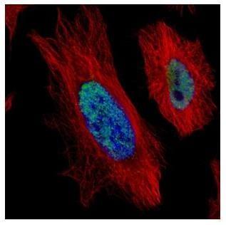 Immunocytochemistry/ Immunofluorescence - Anti-HDAC2 antibody (ab137364)