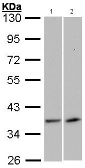 Western blot - Anti-VEGFD antibody (ab137368)
