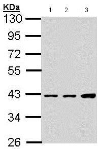Western blot - Anti-Vitamin D Receptor  antibody (ab137371)
