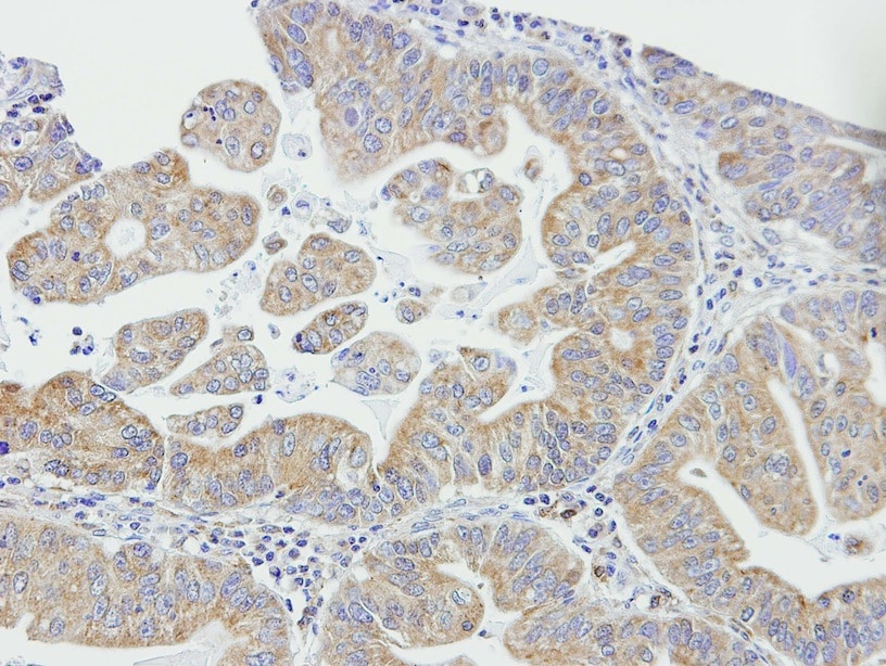 Immunohistochemistry (Formalin/PFA-fixed paraffin-embedded sections) - Anti-DAPP1 antibody (ab137374)