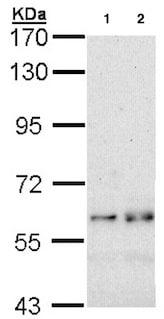 Western blot - Anti-Fyn antibody (ab137382)