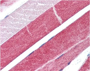 Immunohistochemistry (Formalin/PFA-fixed paraffin-embedded sections) - Anti-ADAM15 antibody - N-terminal (ab137387)
