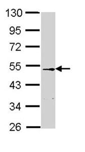 Western blot - Anti-CETP antibody (ab137396)