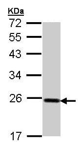 Western blot - Anti-Glutathione Peroxidase 2/GPX2 antibody (ab137431)