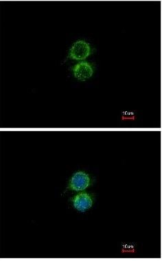 Immunocytochemistry/ Immunofluorescence - Anti-PIP5K1 alpha/PIP5K1A antibody (ab137441)