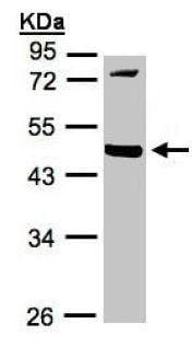 Western blot - Anti-MMP12 antibody (ab137443)
