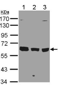 Western blot - Anti-KPNA3 antibody - C-terminal (ab137446)