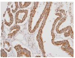Immunohistochemistry (Formalin/PFA-fixed paraffin-embedded sections) - Anti-ERAB antibody (ab137455)