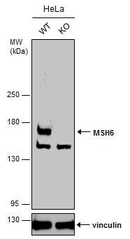 Western blot - Anti-MSH6 antibody (ab137457)