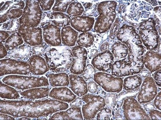 Immunohistochemistry (Formalin/PFA-fixed paraffin-embedded sections) - Anti-FRS2 antibody (ab137458)
