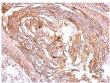 Immunohistochemistry (Formalin/PFA-fixed paraffin-embedded sections) - Anti-S1P1/EDG1 antibody (ab137467)