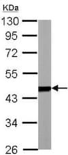 Western blot - Anti-PSMC5 antibody (ab137476)