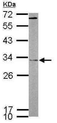 Western blot - Anti-FHL2 antibody (ab137477)