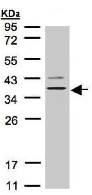 Western blot - Anti-P2Y13 antibody (ab137481)
