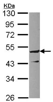 Western blot - Anti-GPRC5C antibody - C-terminal (ab137482)