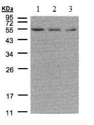 Western blot - Anti-Estrogen Related Receptor alpha antibody - N-terminal (ab137489)