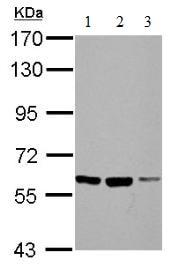 Western blot - Anti-FZD10 antibody (ab137491)