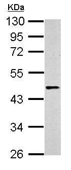 Western blot - Anti-beta 2 Adrenergic Receptor antibody - C-terminal (ab137494)
