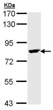 Western blot - Anti-BTK antibody (ab137503)