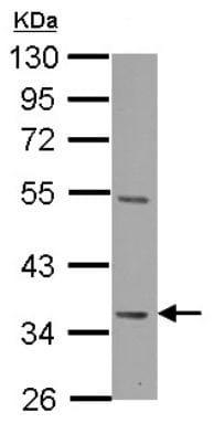 Western blot - Anti-Decorin antibody (ab137508)