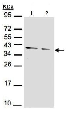 Western blot - Anti-PPP1A/PPP1CA antibody (ab137512)