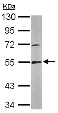 Western blot - Anti-Glutathione Reductase antibody (ab137513)
