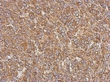 Immunohistochemistry (Formalin/PFA-fixed paraffin-embedded sections) - Anti-FACL4 antibody - Carboxyterminal end (ab137525)