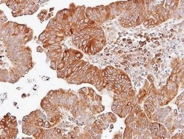 Immunohistochemistry (Formalin/PFA-fixed paraffin-embedded sections) - Anti-Dishevelled 2 antibody (ab137528)