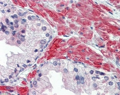 Immunohistochemistry (Formalin/PFA-fixed paraffin-embedded sections) - Anti-5HT2C Receptor antibody (ab137529)