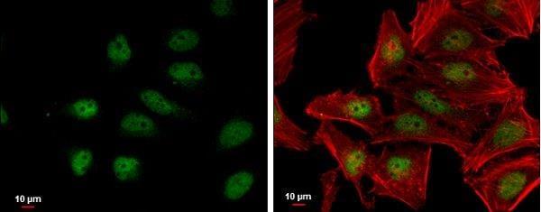 Immunocytochemistry/ Immunofluorescence - Anti-Nrf2 antibody (ab137550)