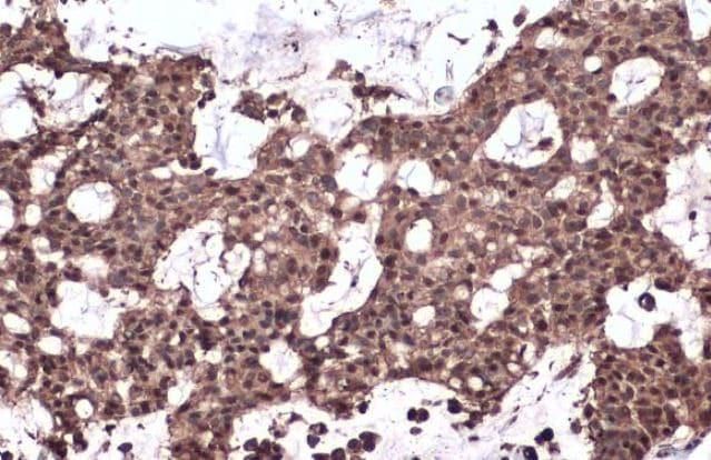 Immunohistochemistry (Formalin/PFA-fixed paraffin-embedded sections) - Anti-Nrf2 antibody (ab137550)