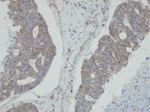 Immunohistochemistry (Formalin/PFA-fixed paraffin-embedded sections) - Anti-N myc interactor/NMI antibody (ab137555)