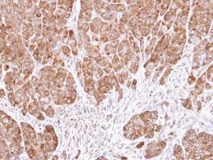 Immunohistochemistry (Formalin/PFA-fixed paraffin-embedded sections) - Anti-eIF5A antibody (ab137561)