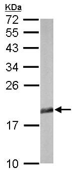 Western blot - Anti-eIF5A antibody (ab137561)