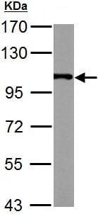 Western blot - Anti-alpha Actinin 4 antibody - C-terminal (ab137564)
