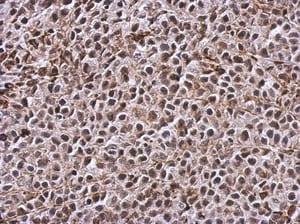 Immunohistochemistry (Formalin/PFA-fixed paraffin-embedded sections) - Anti-TIGAR antibody - C-terminal (ab137573)