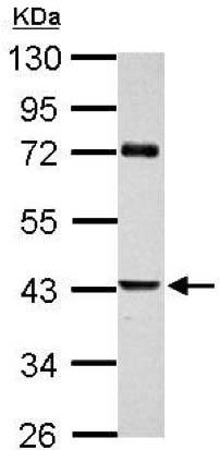 Western blot - Anti-SerpinB2/PAI-2 antibody (ab137588)