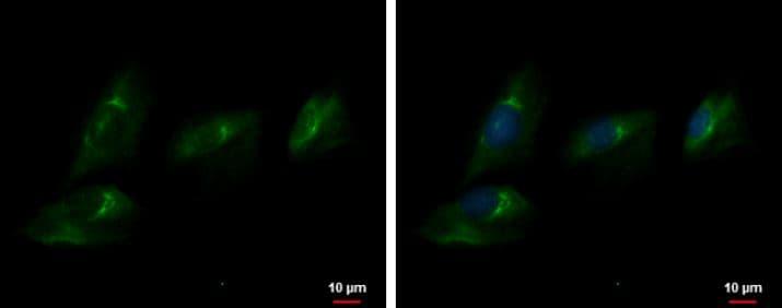 Immunocytochemistry/ Immunofluorescence - Anti-ENPP2/ATX antibody (ab137590)