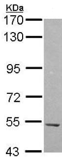 Western blot - Anti-HARS antibody (ab137591)