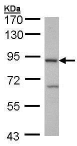 Western blot - Anti-CBLB antibody - C-terminal (ab137596)